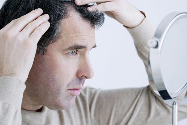 شامپوی ارزان برای درمان ریزش مو