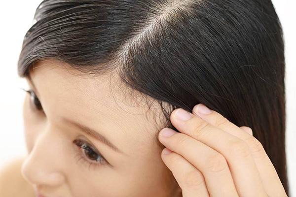 رسیدگی به مو برای جلوگیری از ریزش