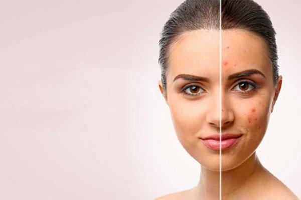 کرم پودر، محصولی مناسب برای پوشاندن عیبهای صورت