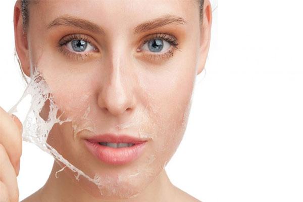لایه برداری با AHA و BHA، مناسبترین انواع کرم درمان جوش زیر پوستی