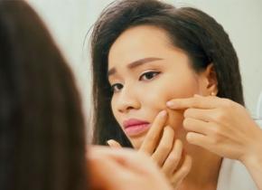 راههای از بین بردن جوش زیر پوستی در زیبابست