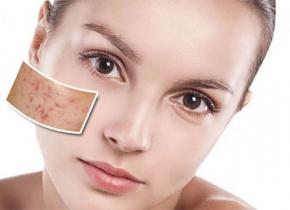 آرایش پوست جوشدار؛ رازهایی که باید بدانید- زیبابست