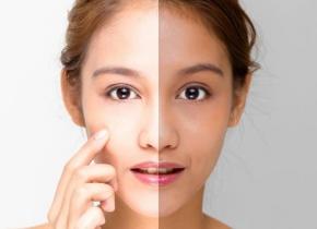 ساده ترین راه های روشن شدن پوست